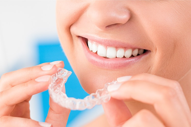 Closeup of a woman smiling as she puts in her Invisalign trays in Fort Smith, Arkansas